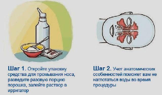 Промывание носа ребенку: как выбрать раствор, какие правила надо соблюдать