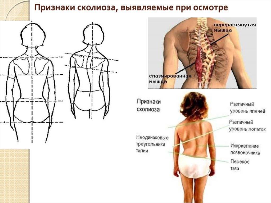Лечебный массаж спины в москве | клиника семейный доктор