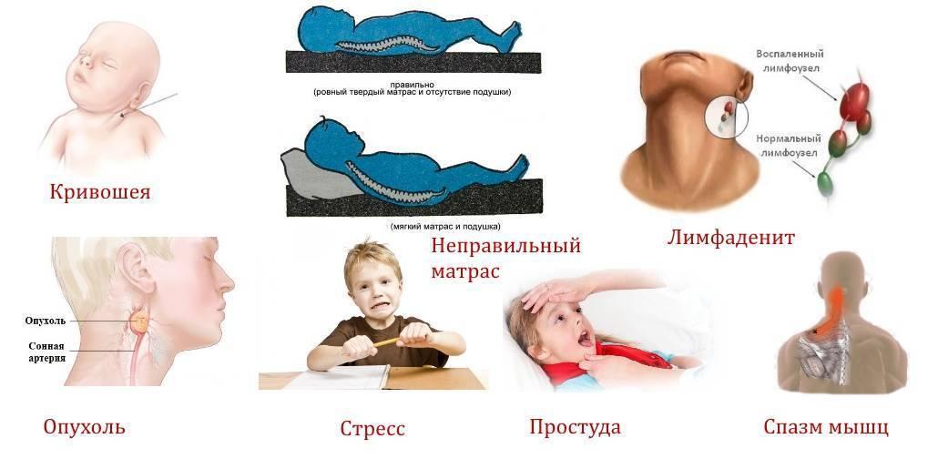 Цервикобрахиалгия (боль в шее с иррадиацией в руку) - лечение, симптомы, причины, диагностика | центр дикуля