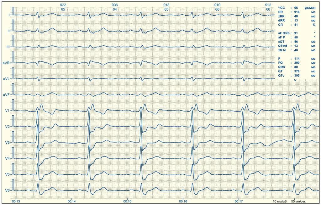 Расшифровка экг: как правильно расшифровать кардиограмму