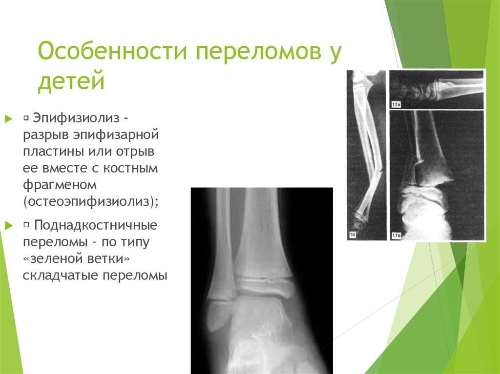 Перелом дистального метаэпифиза лучевой кости (перелом лучевой кости «в типичном месте»)