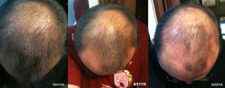 Как увеличить густоту волос при помощи метода hfe