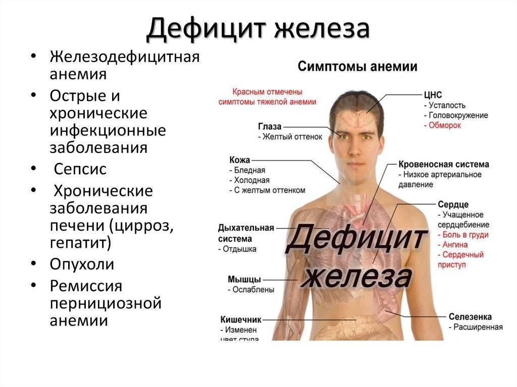 Анемия у мужчин и женщин. диагностика, лечение, симптомы