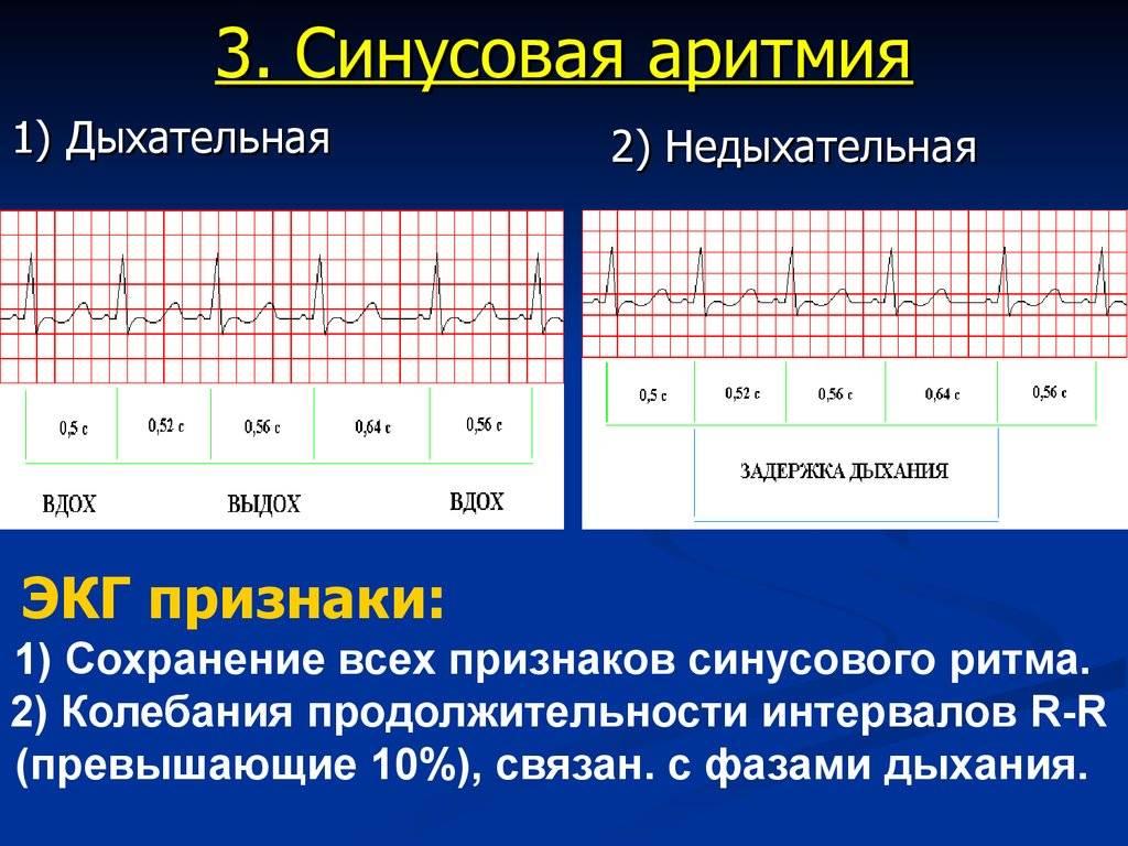 Аритмия у детей и подростков: основные причины, профилактика, лечение нарушений ритма сердца у детей - yod.ua