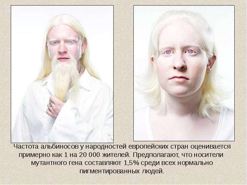 Альбинос — posmotre.li