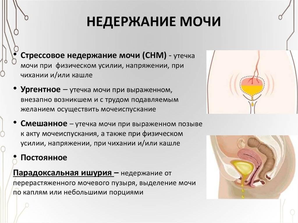 Боль внизу живота у женщины чаще говорит о гинекологическом воспалении