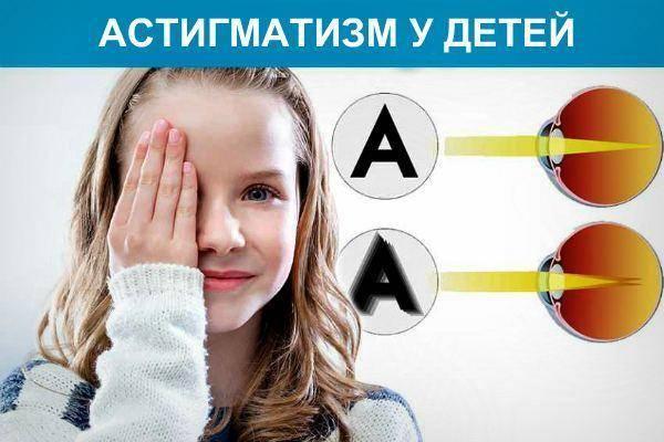 Астигматизм у детей  - причины, признаки, диагностика и лечение