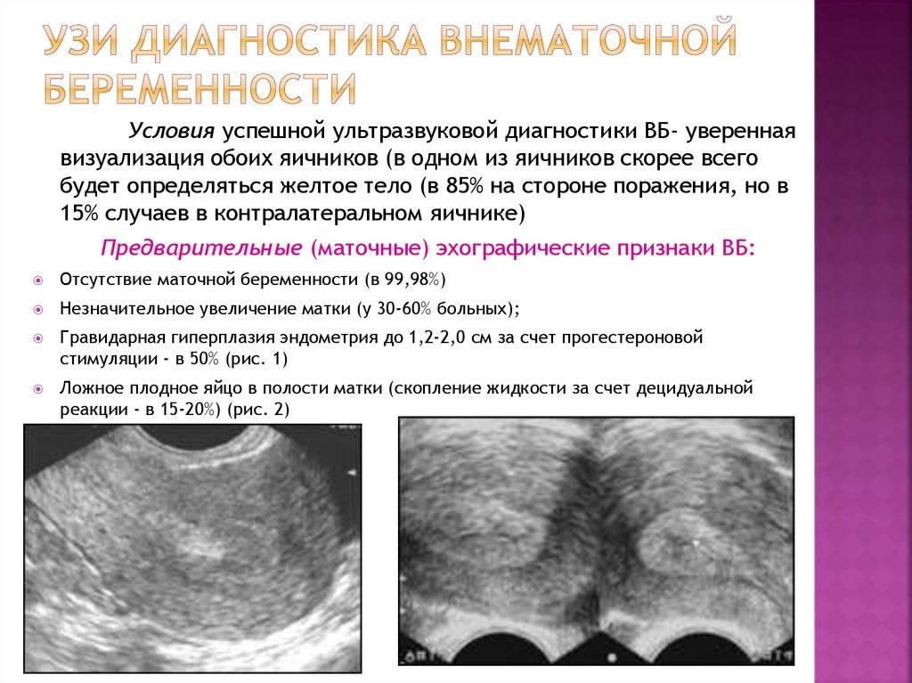 Гидросальпинкс: что это такое, причины, признаки | компетентно о здоровье на ilive