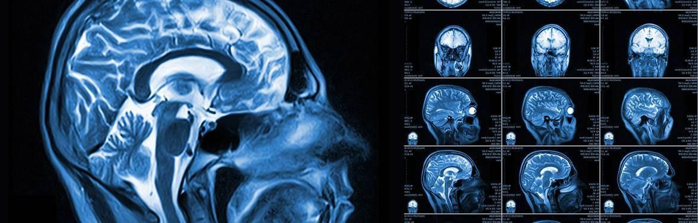 Как делается кт головного мозга ребенку: как подготовить малыша к обследованию?