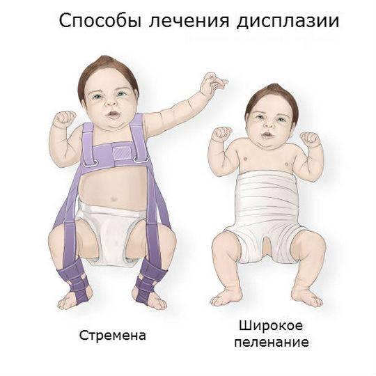Дисплазия тазобедренных суставов у новорожденного: признаки и лечение