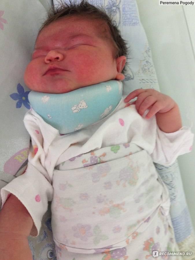 Воротник шанца: инструкция применения для новорождённых