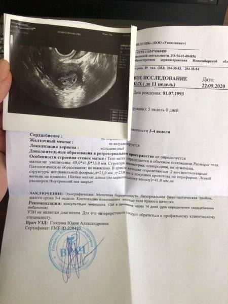 На какой неделе становится видно эмбрион на узи и почему иногда его незаметно