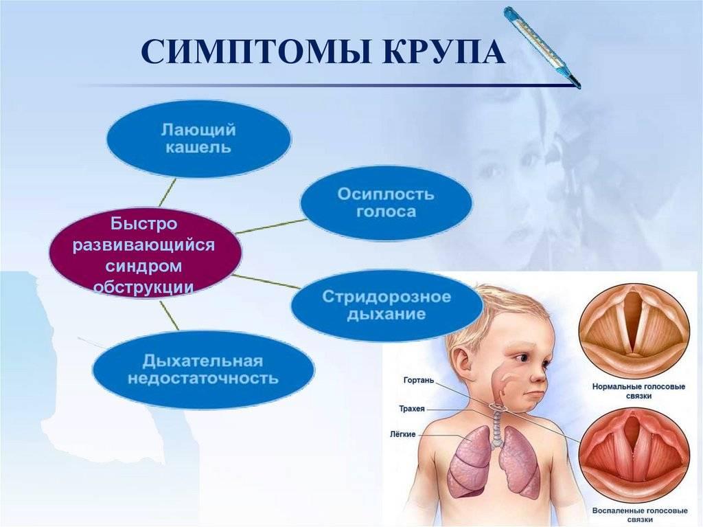 Коклюш. симптомы, диагностика, лечение - доказательная медицина для всех