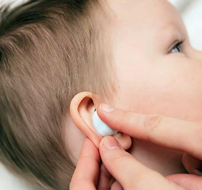 Неприятный запах из уха у грудничка