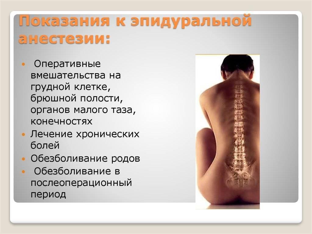 Болит спина после эпидуральной анестезии: нормально ли это и что делать?
