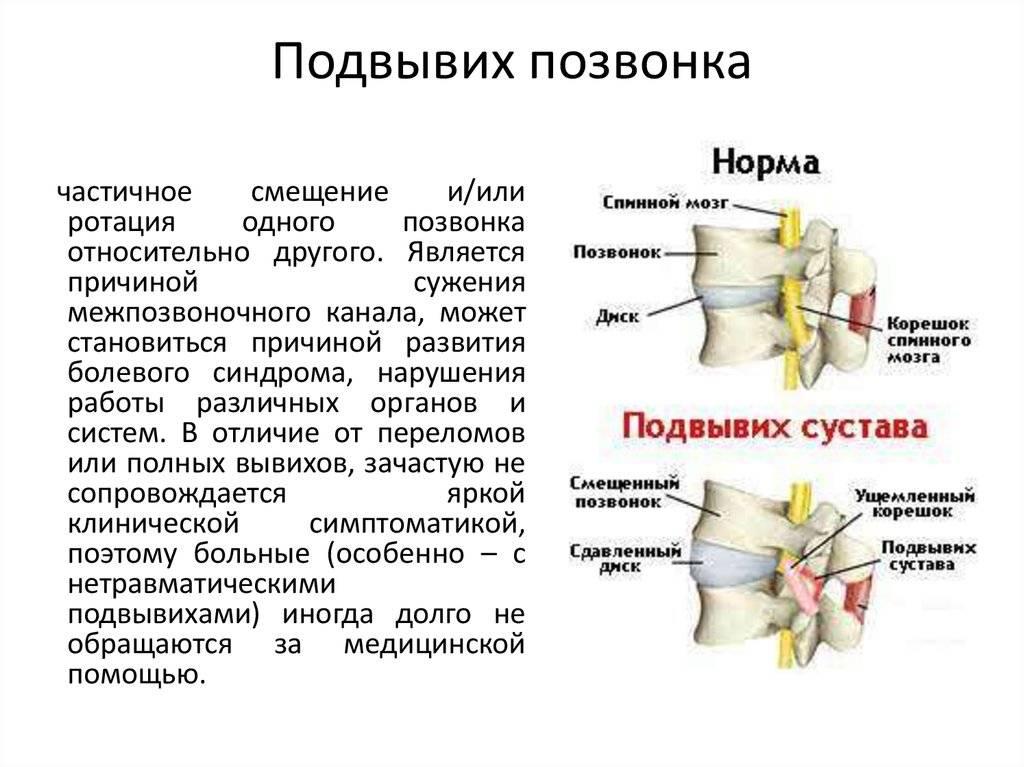 Вывихи позвонков | eurolab | травматология