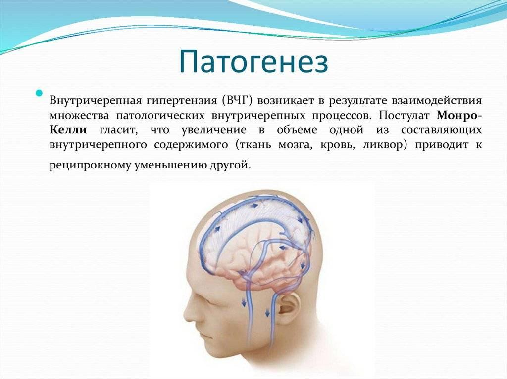 Доброкачественная внутричерепная гипертензия: причины, симптомы, диагностика, лечение