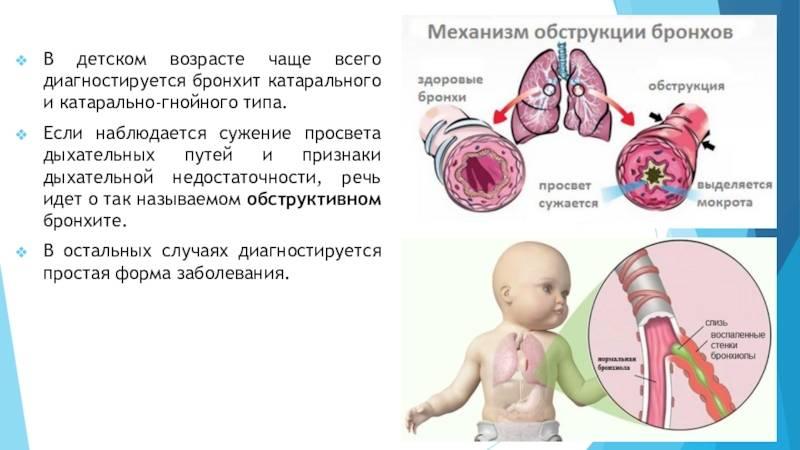 Бронхит — что это за «монстр»? каким он бывает у детей, как проявляется и чем его вылечить? лечение бронхита у детей лечение обструктивного бронхита у детей 1 года.