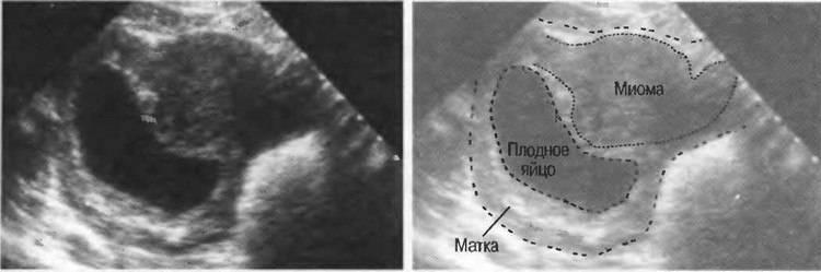 """Диагноз """"детская матка"""" и беременность"""