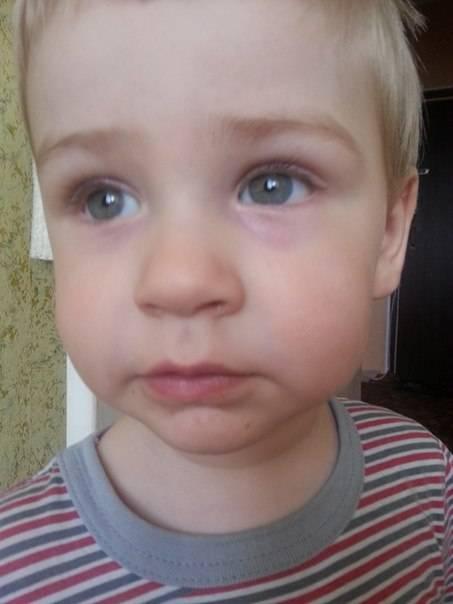 Дело темное: причины появления синяков под глазами
