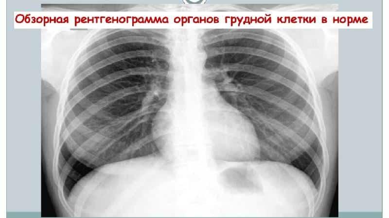 Кт органов грудной клетки ребенку: показания и противопоказания для проведения процедуры