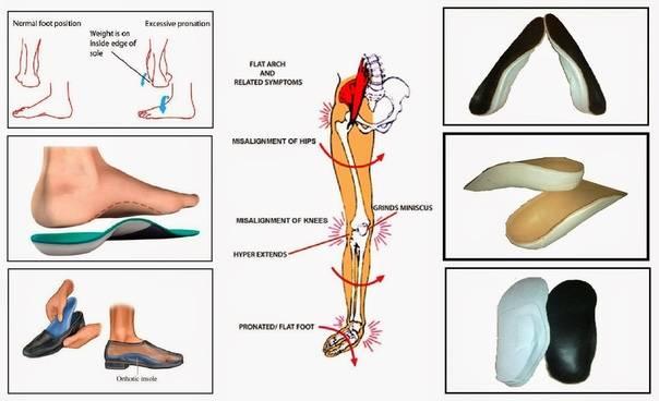 Виды ортопедических стелек