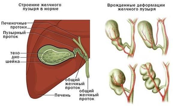 Дисфункциональные расстройства билиарного тракта: причины и методы лечения