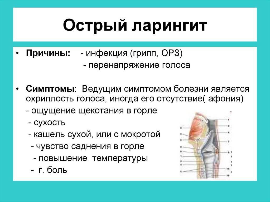 Острый и хронический ларингит: симптомы, диагностика и лечение