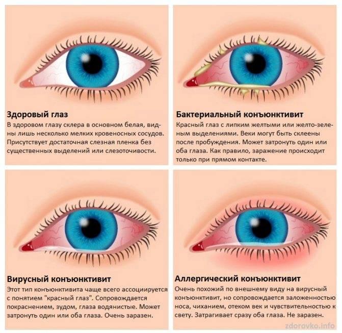 Аллергия вокруг глаз  - симптомы, причины, профилактика и лечение