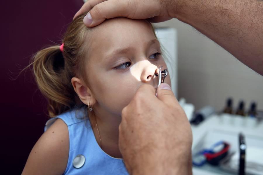Удаление аденоидов у детей под общим и местным наркозом   компетентно о здоровье на ilive