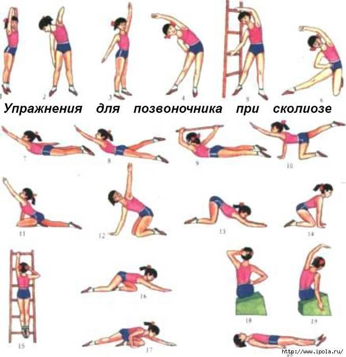 Лфк, гимнастика и упражнения при сколиозе: как делать