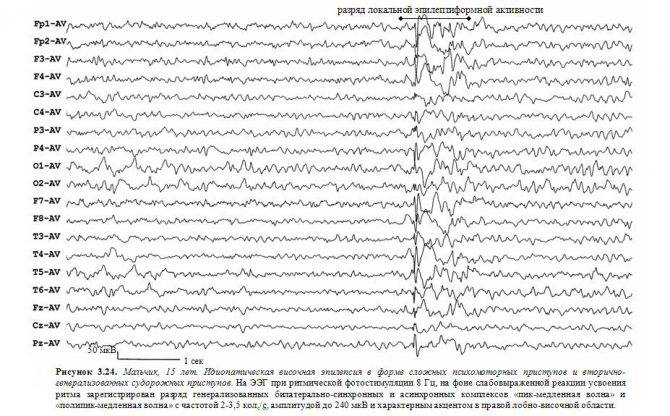 Виды припадков при эпилепсии. как отличить эпилептический припадок от истерического - сибирский медицинский портал