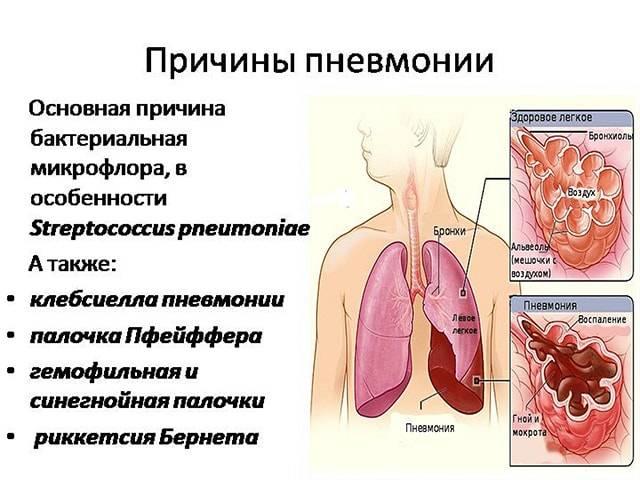 Степени поражения легких: кт1, кт2, кт3, кт4