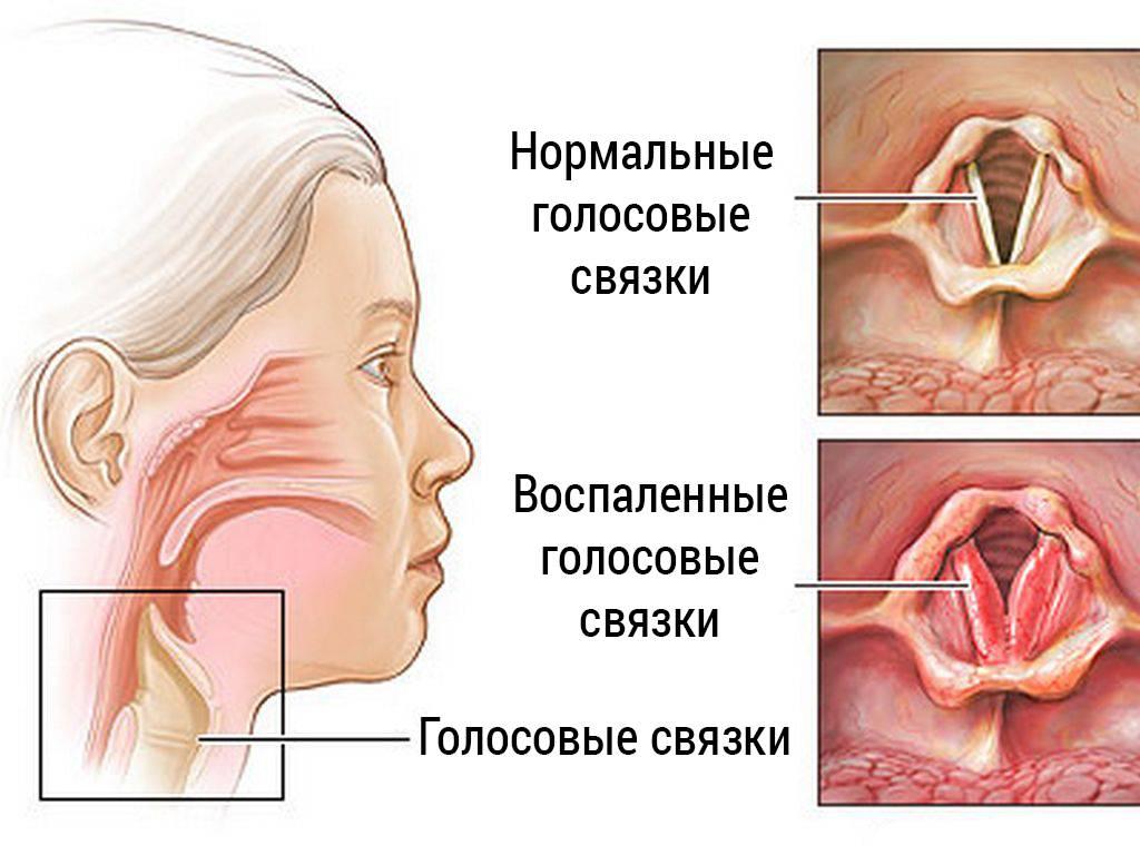 Ларингит симптомы и лечение