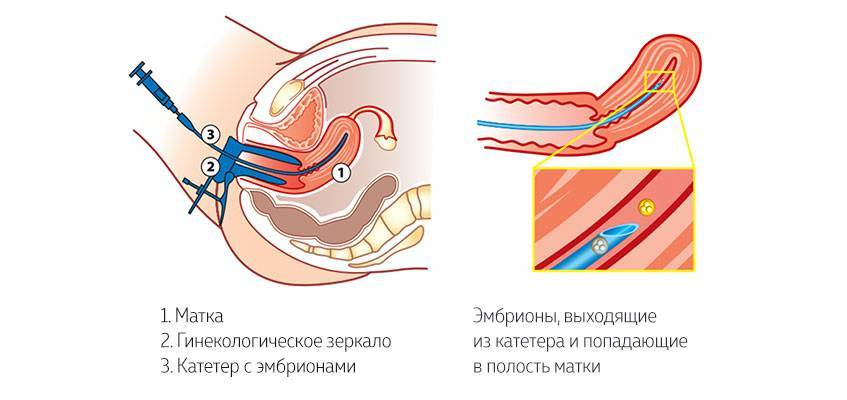 После переноса эмбрионов: когда он должен прижиться и как ему помочь