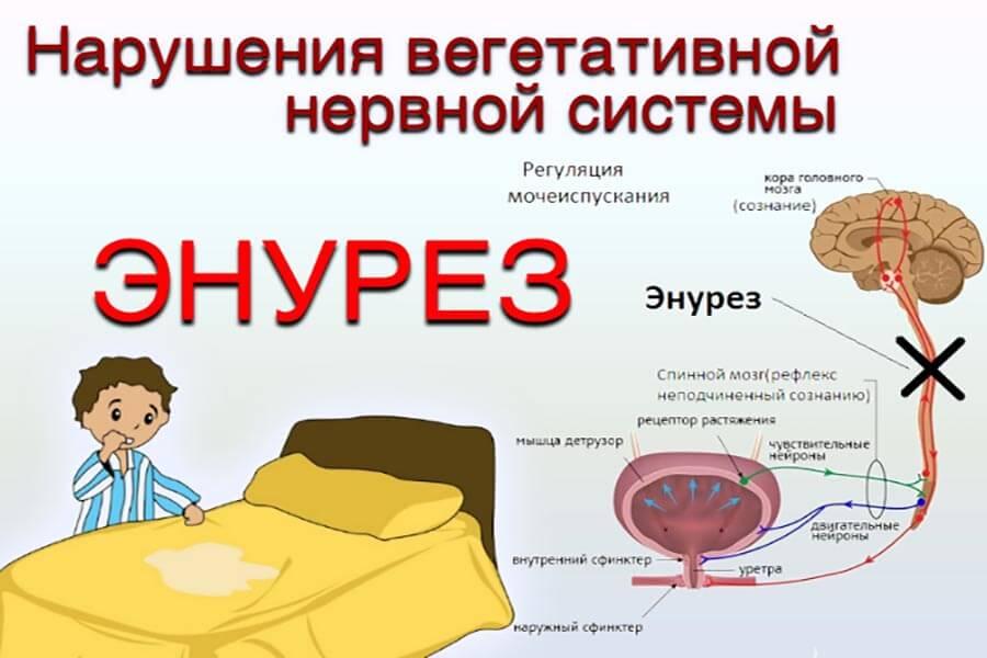 Лечение энкопреза в санкт-петербурге (спб)