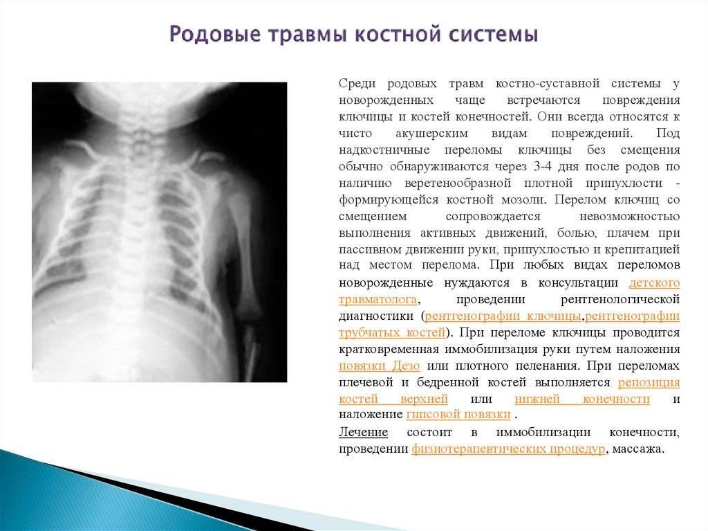 Методика minar® — малоинвазивный метод хирургического лечения вывиха акромиального конца ключицы в клинике на комарова