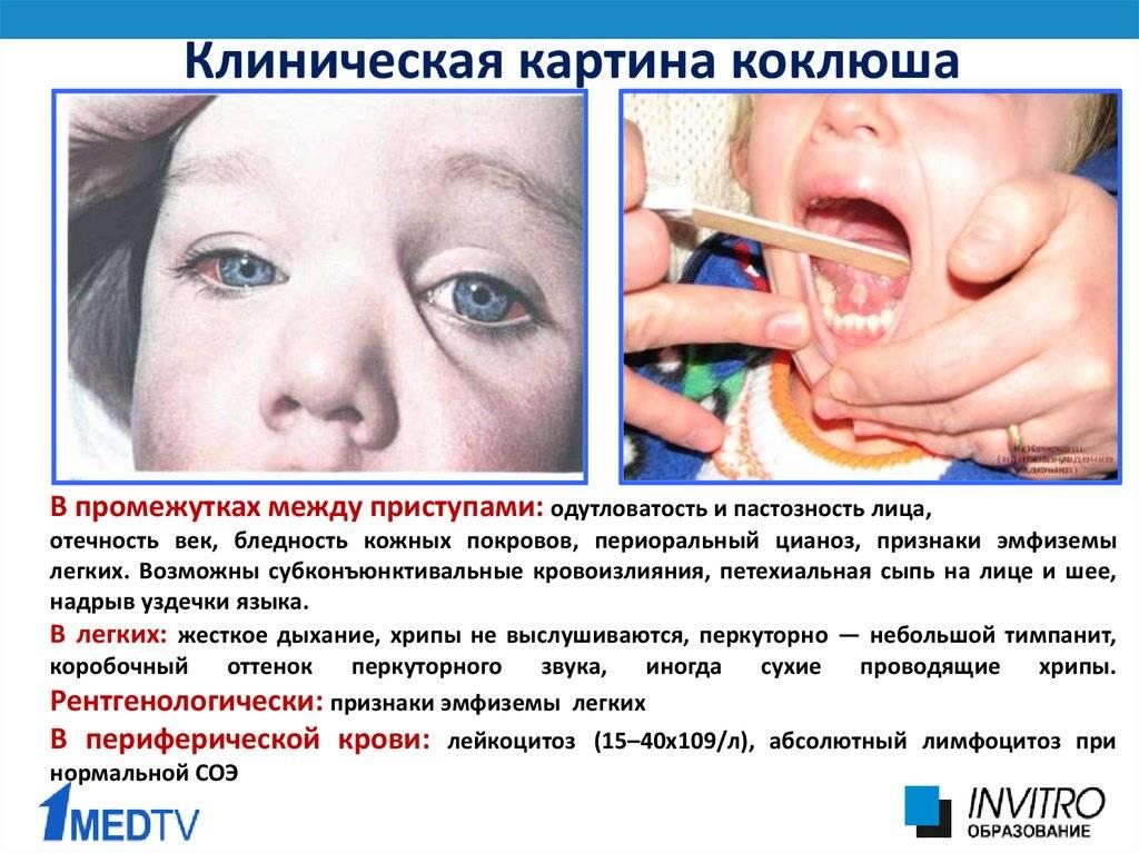 Коклюш: диагностика, симптомы, лечение – напоправку – напоправку