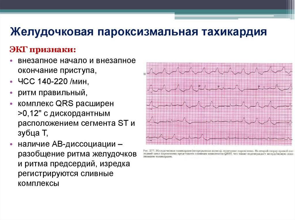 Сердцебиение и тахикардия