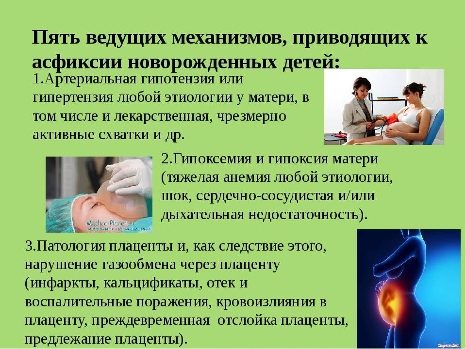 Асфиксия новорожденных: 17 частых причин развития асфиксии - городская больница №1