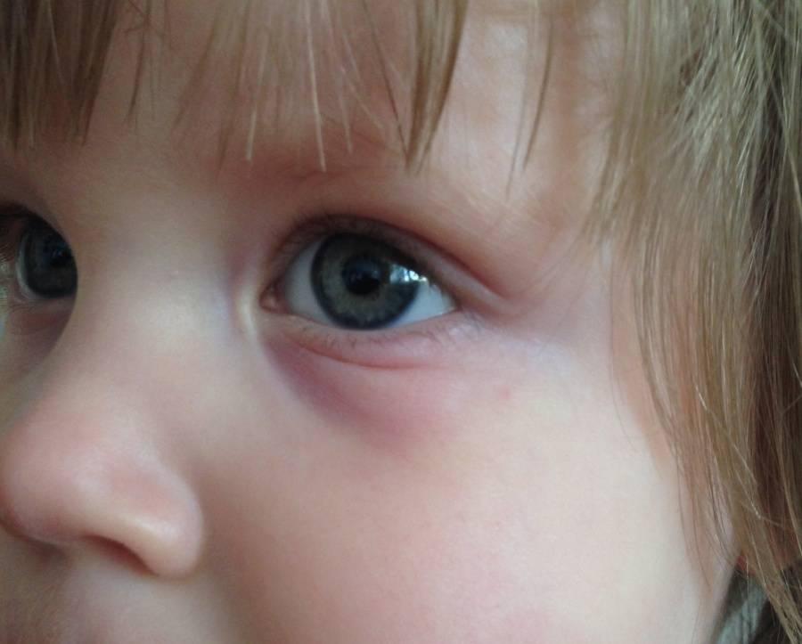 Синяки под глазами у грудничка: причины, почему у новорожденых появдяются темные круги, советы родителям