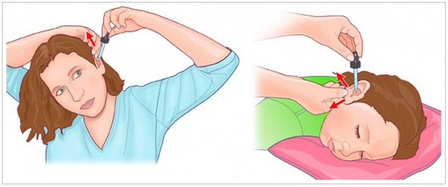 Как нужно правильно закапывать капли в нос ребенку?