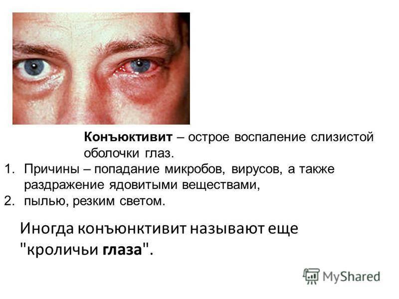 Вирусный конъюнктивит у взрослых - энциклопедия ochkov.net