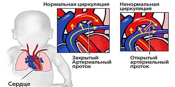 Шумы в сердце у ребенка: причины систолического, функционального шума в 1-3 года