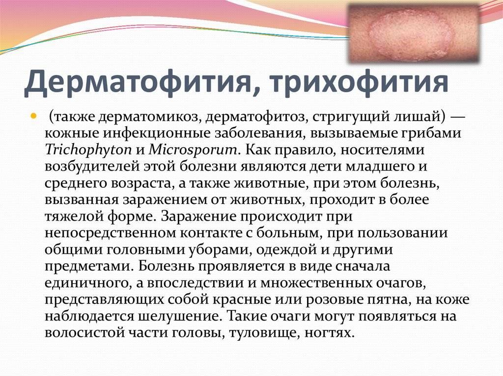 Грибковые заболевания кожи у детей - признаки, причины, симптомы, лечение и профилактика - idoctor.kz