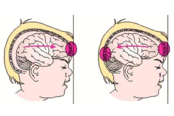 Кмн — хлыстовая травма шеи, ушиб шеи и затылка, шейно-черепной синдром.