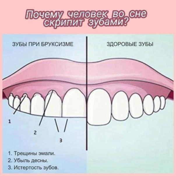 Почему щелкает челюсть при жевании, при открытии рта, во время речи