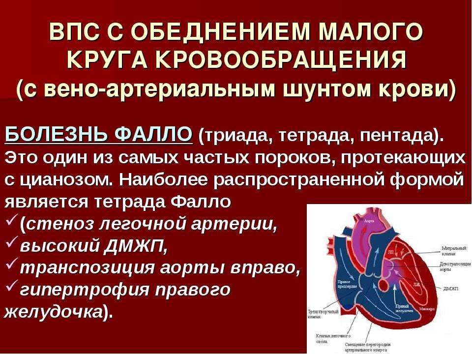 Врожденные пороки сердца (открытый артериальный проток, тетрада фалло, коарктация аорты, дефект межжелудочковой перегородки)