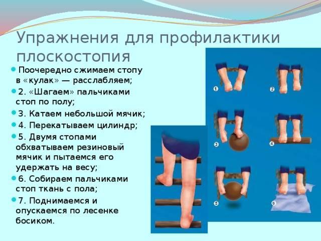 Массаж при плоскостопии у детей, упражнения в домашних условиях (видео ЛФК)