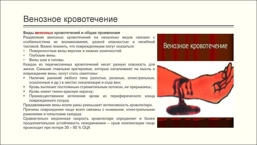 Маточное кровотечение. виды, причины, первые признаки, как остановить, первая помощь, лечение кровотечения, народные средства. :: polismed.com